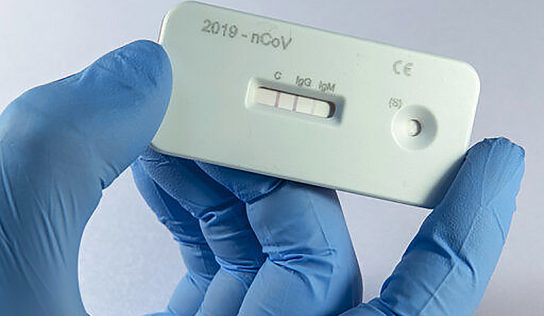 Estudo epidemiológico estima movimentação da Covid-19 em Monte Alto
