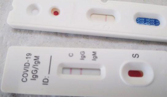 Estudo epidemiológico de Monte Alto avança e identifica bebê com Covid-19